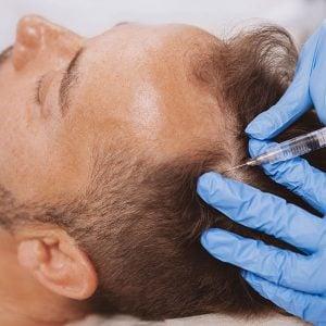 shophumm hair treatment